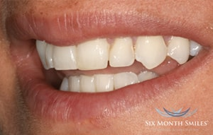 Six Month Smiles Cosmetic Braces - After