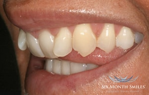 Six Month Smiles Cosmetic Braces - Before